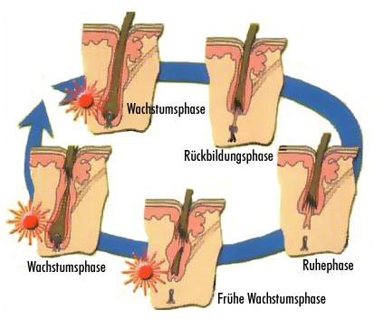kopfhaare entfernen dauerhaft